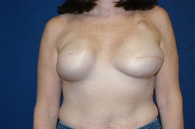 Breast Reconstruction Gallery - Patient 6389752 - Image 1