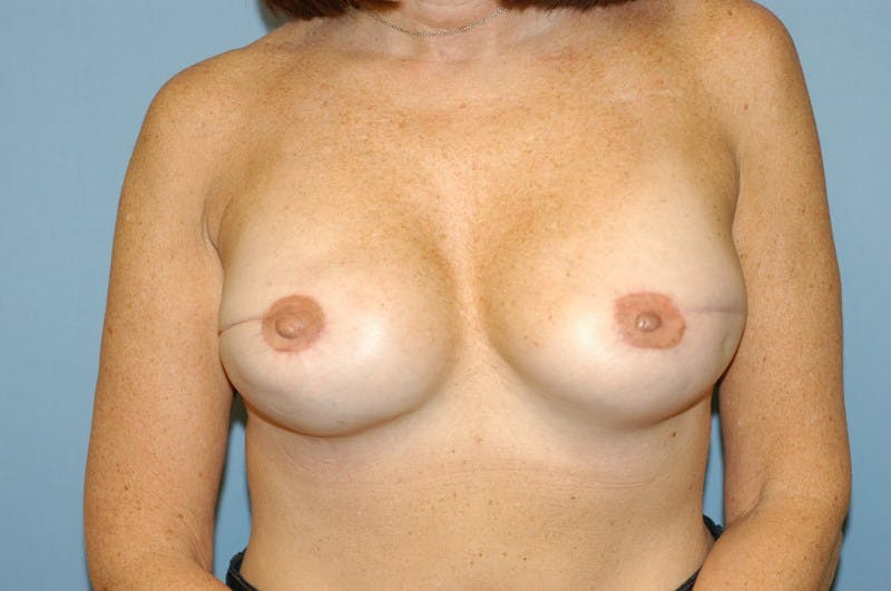 Breast Reconstruction Gallery - Patient 6389752 - Image 2