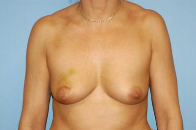Breast Reconstruction Gallery - Patient 6389754 - Image 5