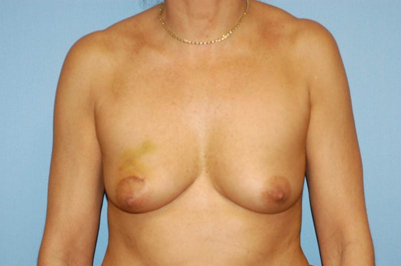 Breast Reconstruction Gallery - Patient 6389754 - Image 1