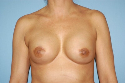 Breast Reconstruction Gallery - Patient 6389754 - Image 2