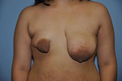 Breast Reconstruction Gallery - Patient 6389756 - Image 6