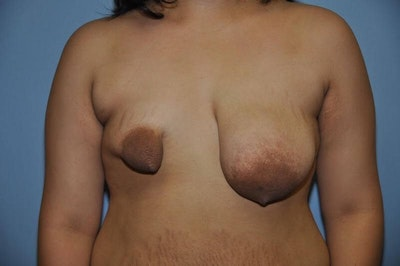 Breast Reconstruction Gallery - Patient 6389756 - Image 1