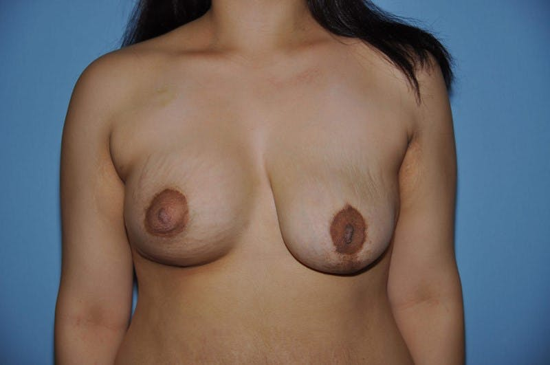 Breast Reconstruction Gallery - Patient 6389756 - Image 2