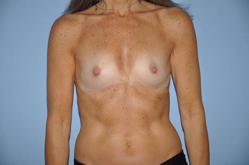 Breast Reconstruction Gallery - Patient 6389758 - Image 1