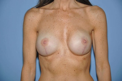 Breast Reconstruction Gallery - Patient 6389758 - Image 2
