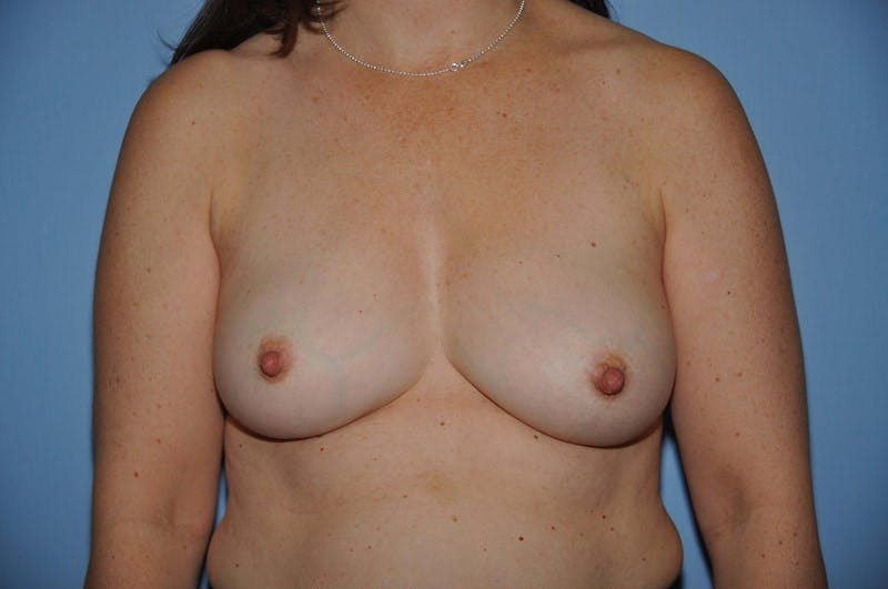 Breast Reconstruction Gallery - Patient 6389759 - Image 1