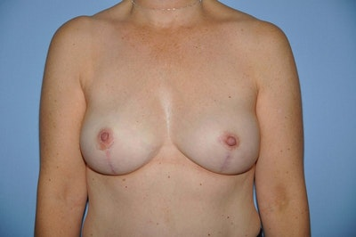 Breast Reconstruction Gallery - Patient 6389759 - Image 2