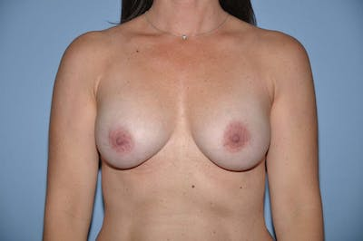 Breast Reconstruction Gallery - Patient 6389761 - Image 9