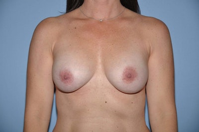 Breast Reconstruction Gallery - Patient 6389761 - Image 1