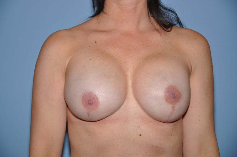 Breast Reconstruction Gallery - Patient 6389761 - Image 2