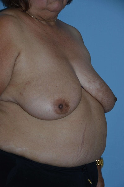 Breast Reconstruction Gallery - Patient 6389813 - Image 1