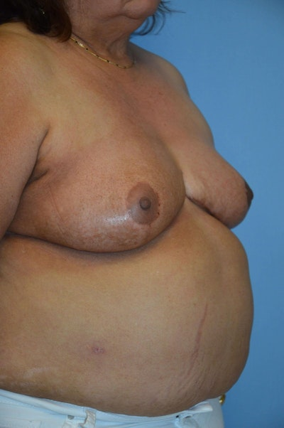 Breast Reconstruction Gallery - Patient 6389813 - Image 2