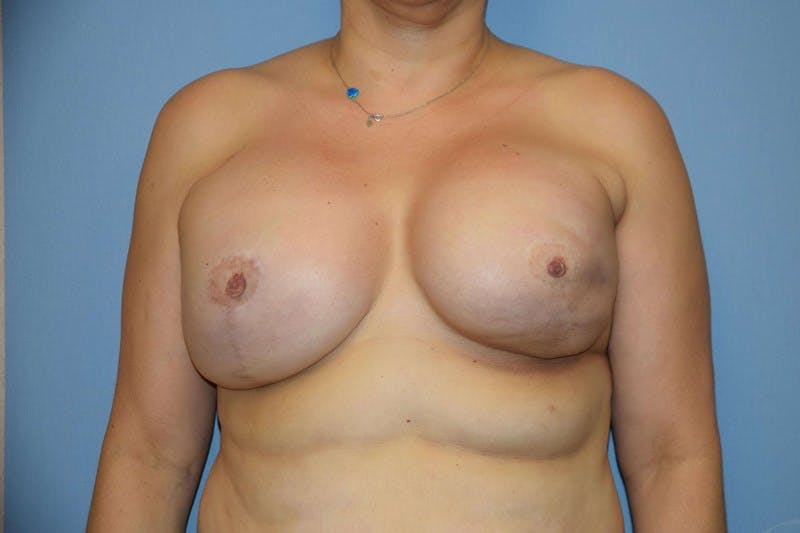 Breast Reconstruction Gallery - Patient 14281733 - Image 1