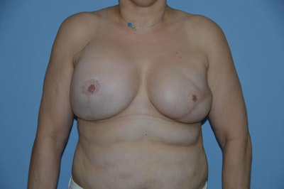 Breast Reconstruction Gallery - Patient 6389814 - Image 2