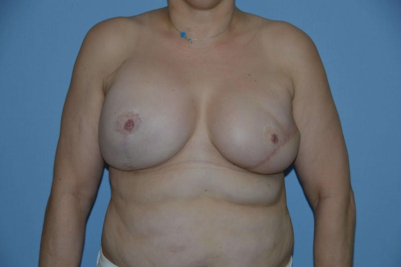 Breast Reconstruction Gallery - Patient 14281733 - Image 2