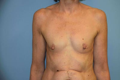 Breast Reconstruction Gallery - Patient 6389815 - Image 12