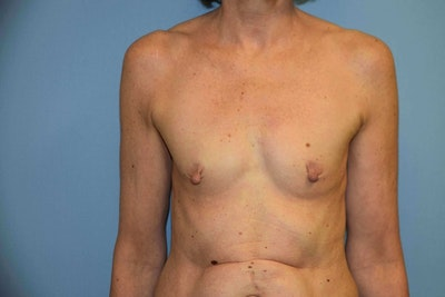 Breast Reconstruction Gallery - Patient 6389815 - Image 1