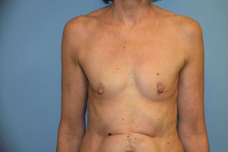 Breast Reconstruction Gallery - Patient 14281734 - Image 1