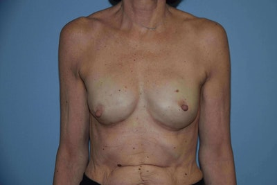 Breast Reconstruction Gallery - Patient 6389815 - Image 2