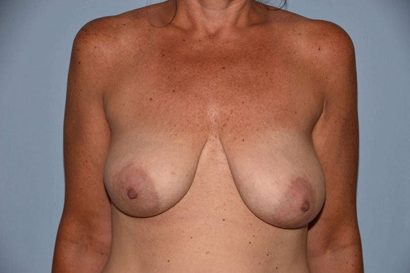 Breast Reconstruction Gallery - Patient 14281735 - Image 1