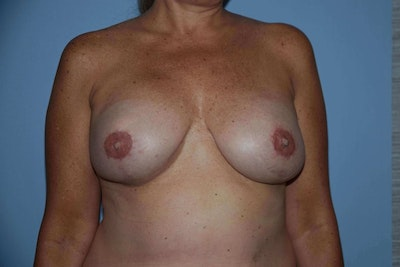 Breast Reconstruction Gallery - Patient 6389816 - Image 2