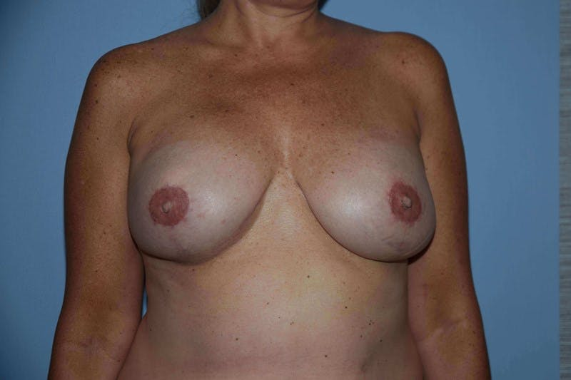 Breast Reconstruction Gallery - Patient 14281735 - Image 2