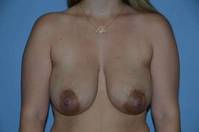 Breast Reconstruction Gallery - Patient 6389817 - Image 1