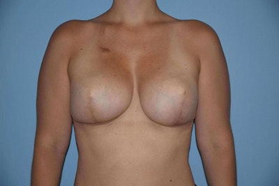 Breast Reconstruction Gallery - Patient 6389817 - Image 2