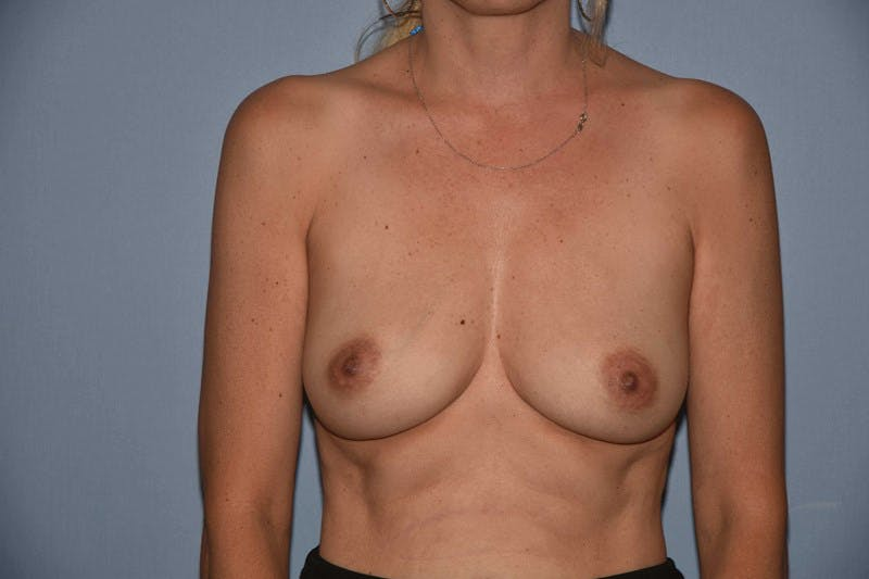 Breast Reconstruction Gallery - Patient 14281737 - Image 1