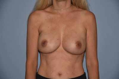 Breast Reconstruction Gallery - Patient 6389820 - Image 2