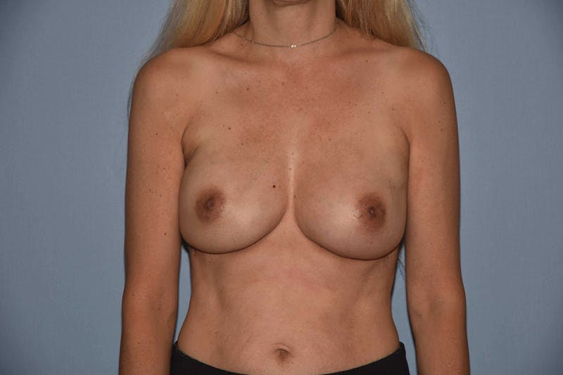 Breast Reconstruction Gallery - Patient 14281737 - Image 2