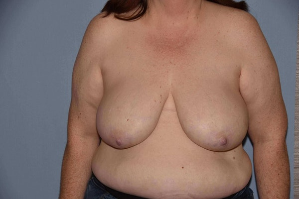 Breast Reconstruction Gallery - Patient 6389821 - Image 1