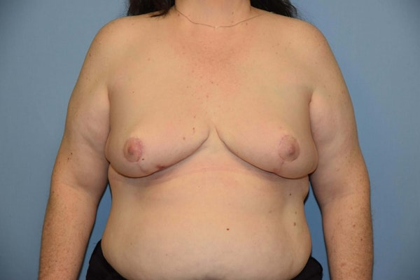 Breast Reconstruction Gallery - Patient 6389821 - Image 2
