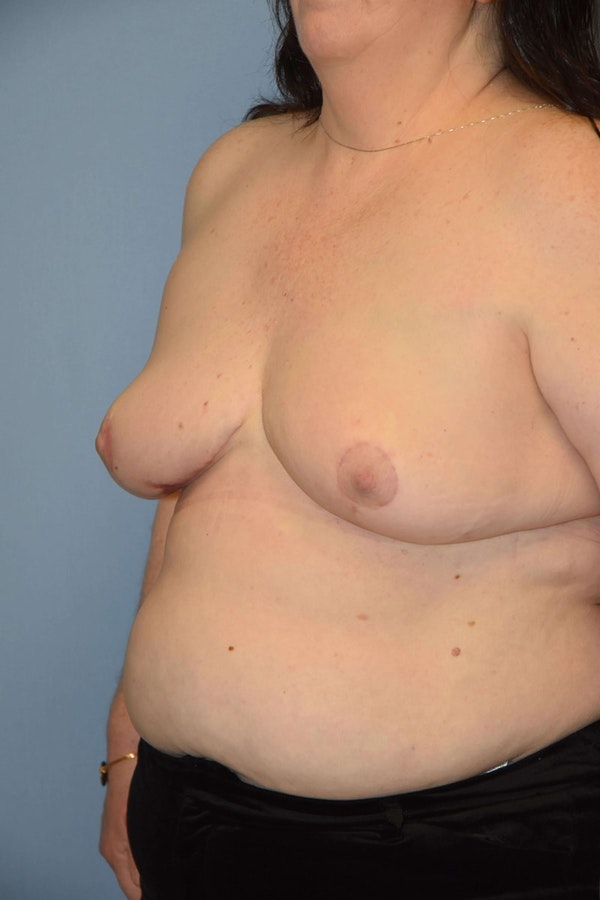 Breast Reconstruction Gallery - Patient 6389821 - Image 4