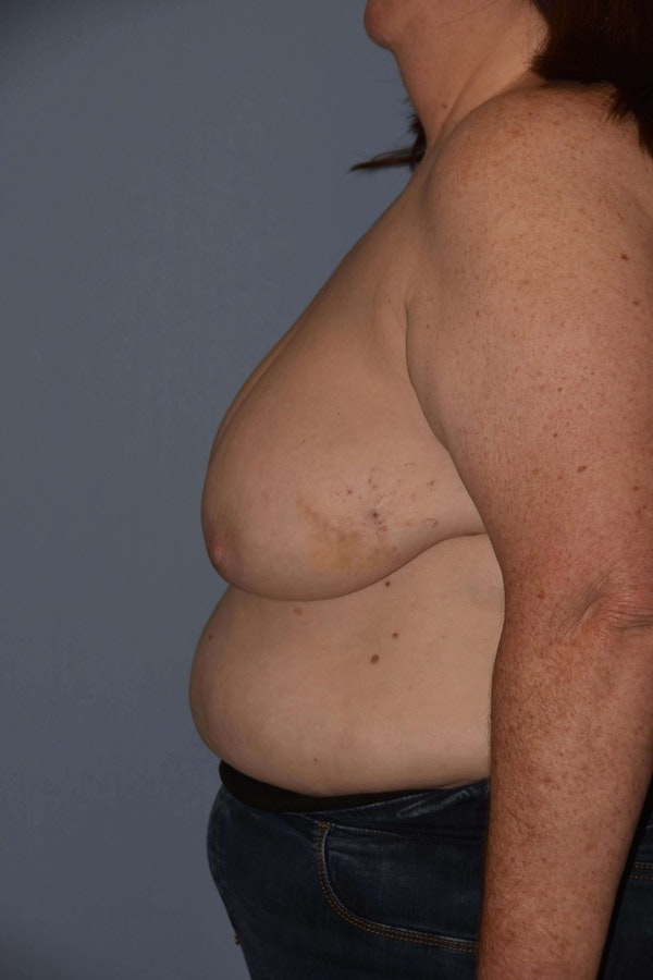 Breast Reconstruction Gallery - Patient 6389821 - Image 5