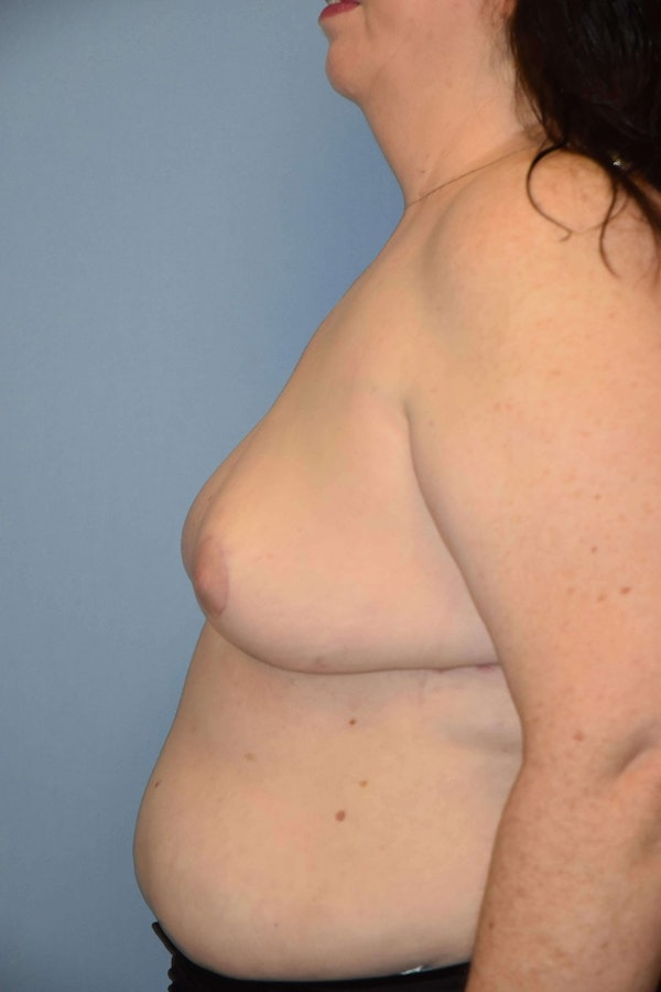 Breast Reconstruction Gallery - Patient 6389821 - Image 6