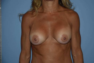 Breast Reconstruction Gallery - Patient 6389822 - Image 17