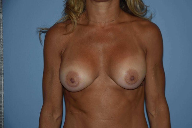 Breast Reconstruction Gallery - Patient 14281739 - Image 1