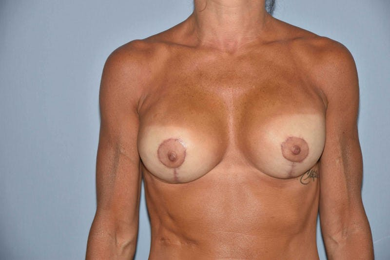 Breast Reconstruction Gallery - Patient 14281739 - Image 2