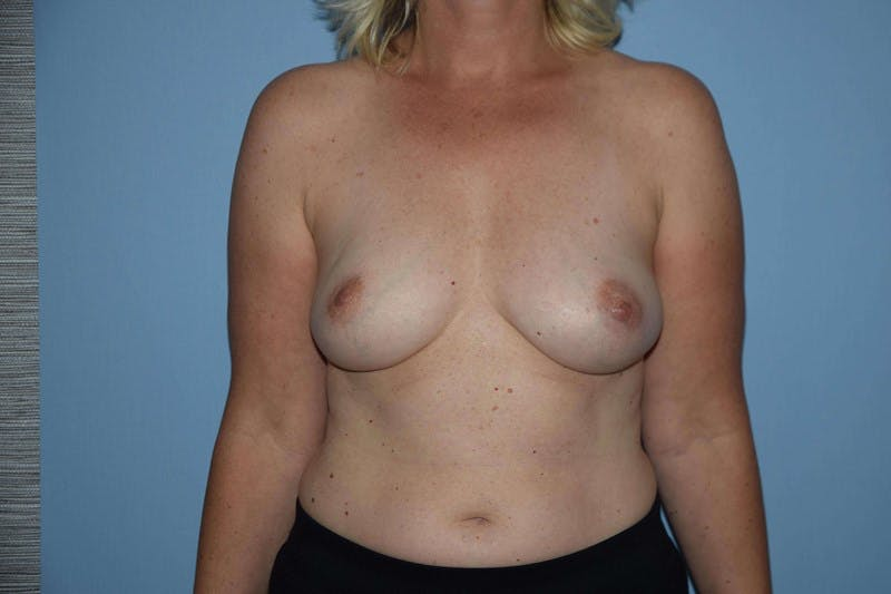Breast Reconstruction Gallery - Patient 14281740 - Image 1