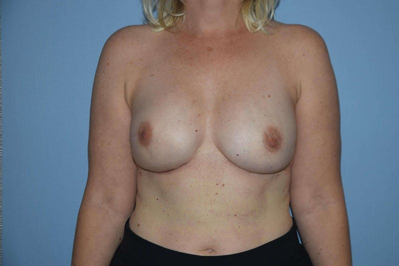 Breast Reconstruction Gallery - Patient 14281740 - Image 2