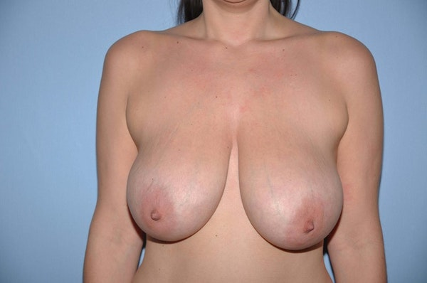 Before and After Long Island Breast Reduction