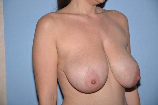 Breast Reduction Gallery - Patient 6389825 - Image 3