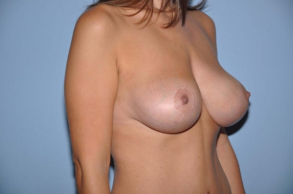 Breast Reduction Gallery - Patient 6389825 - Image 4