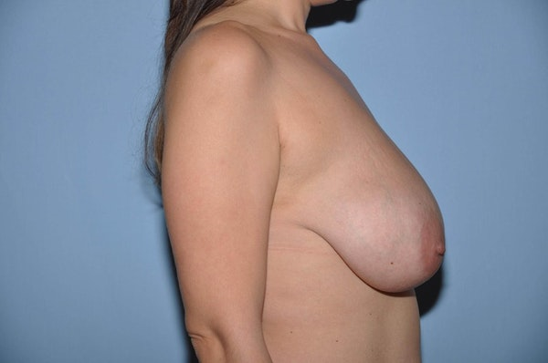 Breast Reduction Gallery - Patient 6389825 - Image 5