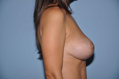 Breast Reduction Gallery - Patient 6389825 - Image 6