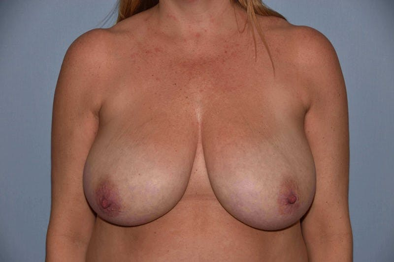 Breast Reduction Gallery - Patient 6389826 - Image 1