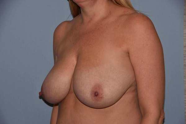 Breast Reduction Gallery - Patient 6389826 - Image 3