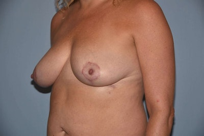 Breast Reduction Gallery - Patient 6389826 - Image 4